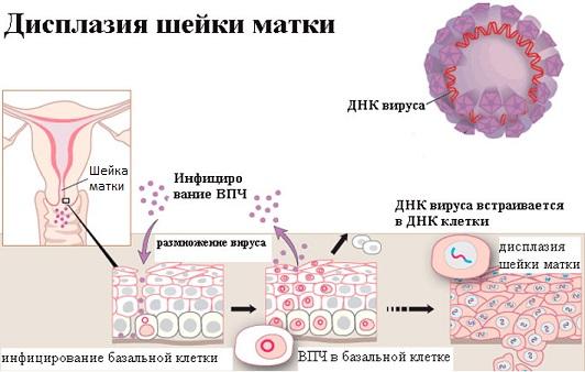 ВПЧ и дисплазия