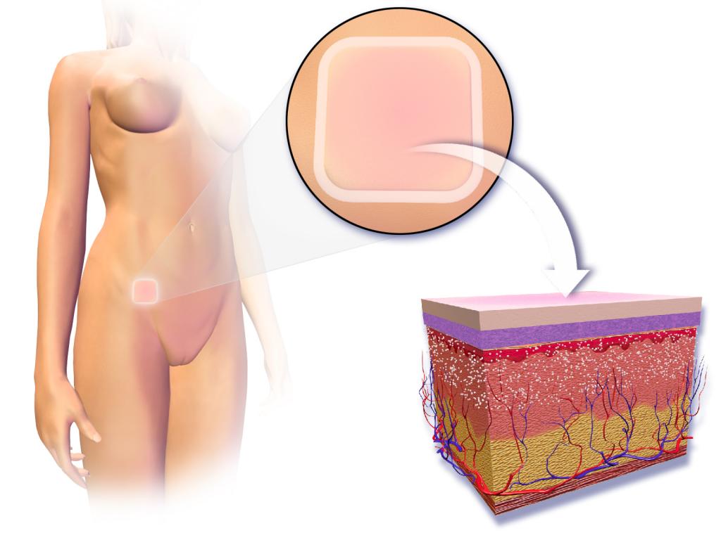 контрацептивный пластырь механизм действия