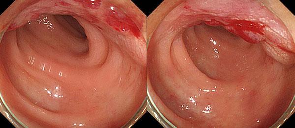 Диагностика эндомтериоза