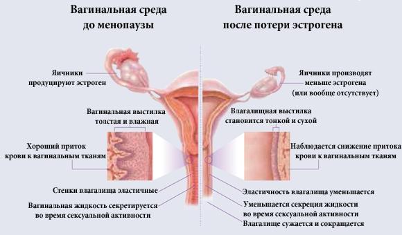 атрофия влагалища в менопаузу