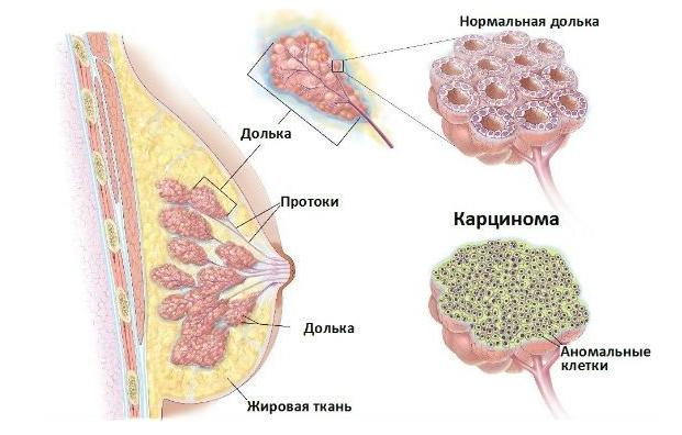 что собой представляет карцинома молочной желзы