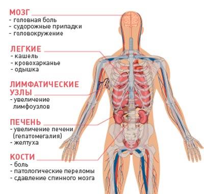 карцинома молочной железы метастазы