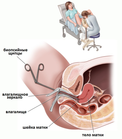 диагностика лейкоплакии