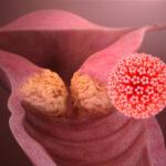 причинах и лечении рака шейки матки