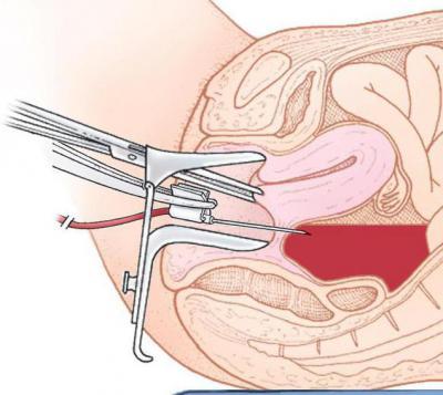 пункция (прокол) заднего свода влагалища